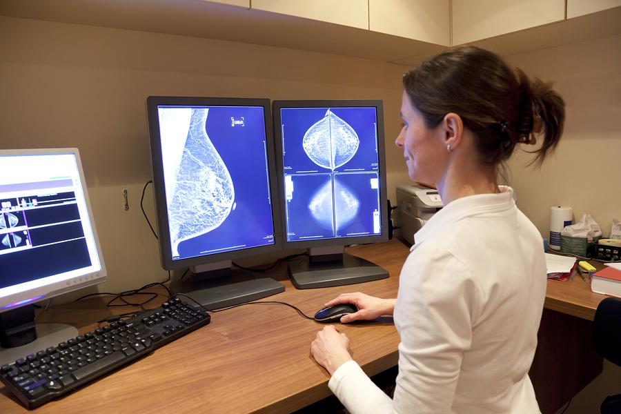 Terapia celowana w raku piersi